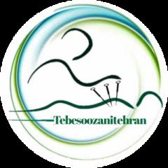 طب سوزنی طب سنتی ماساژ درمانی تهران